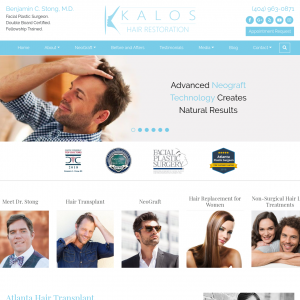 Kalos Hair Transplant website