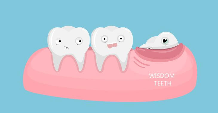 coming in wisdom tooth