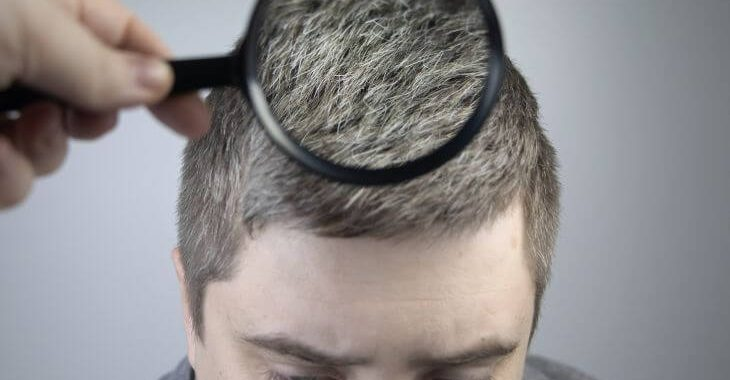 Trychologist examining graying hair of a young man suffering from Marie Antionette Syndrome.