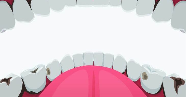 Teeth with different stages of cavity.