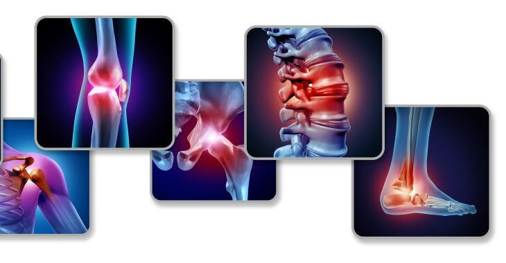 Interventional pain management for chronic and acute pain conditions.