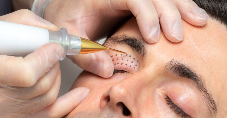 A man undergoing non-surgical skin tightening procedure.