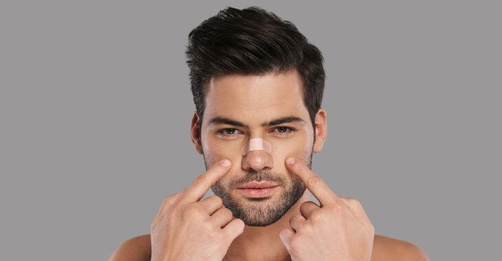 Young man pointing at his nose after saddle nose deformity correction procedure.